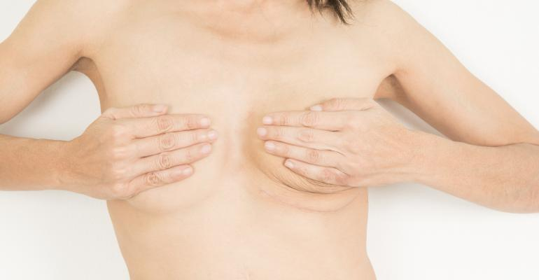 Woman breasts