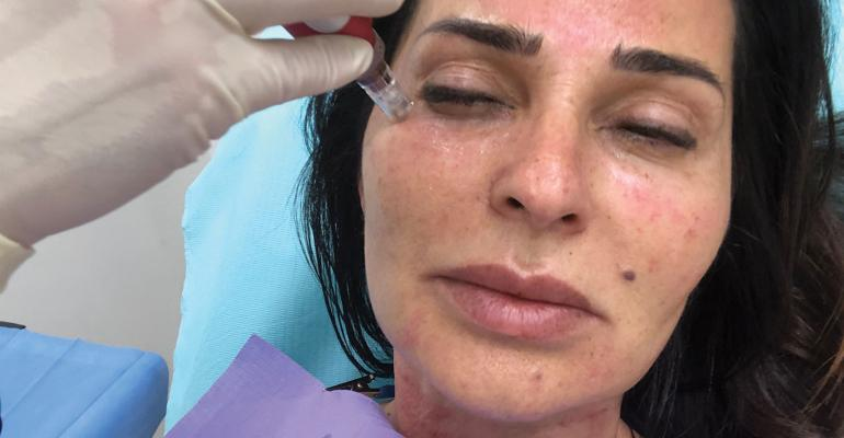 Energy-based microneedling: More than a one-trick therapy