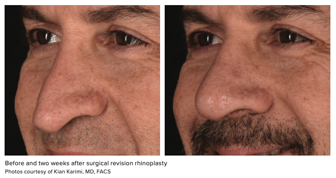 Before and two weeks after surgical revision rhinoplasty Photos courtesy of Kian Karimi, MD, FACS