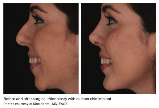 Before and after surgical rhinoplasty with custom chin implant Photos courtesy of Kian Karimi, MD, FACS