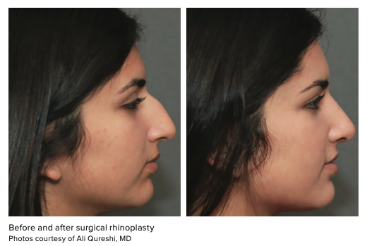 Before and after surgical rhinoplasty Photos courtesy of Ali Qureshi, MD