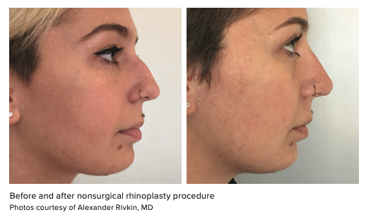 Before and after nonsurgical rhinoplasty procedure Photos courtesy of Alexander Rivkin, MD