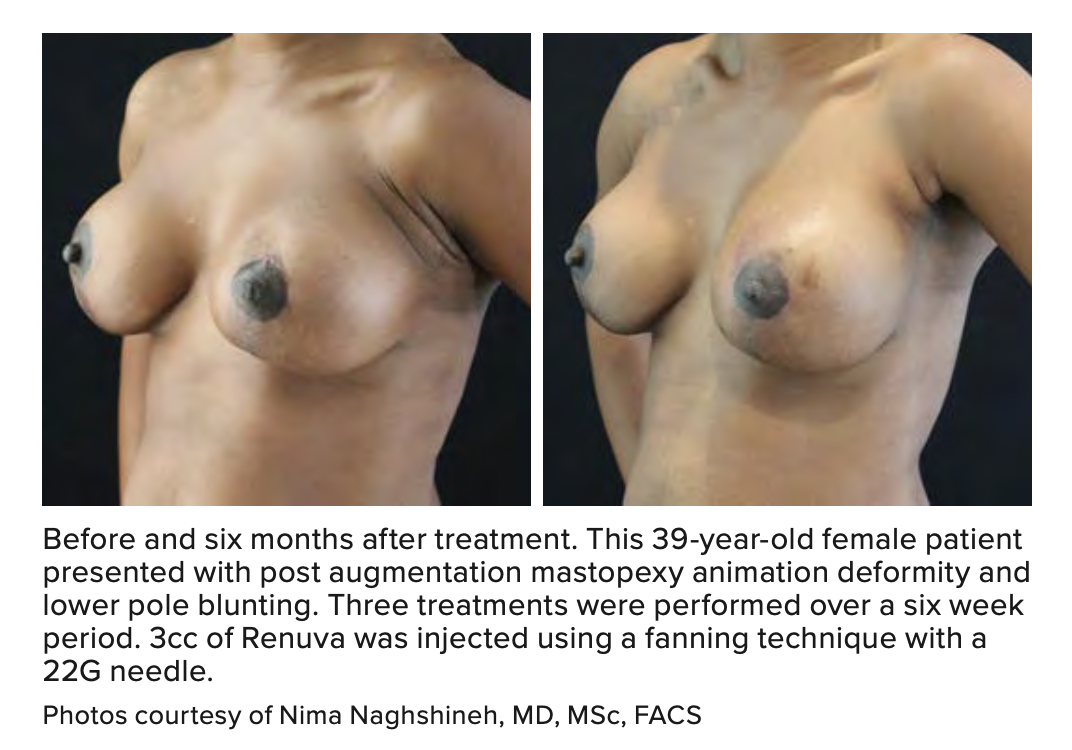 Before and six months after treatment. This 39-year-old female patient presented with post augmentation mastopexy animation deformity and lower pole blunting. Three treatments were performed over a six week period. 3cc of Renuva was injected using a fanni