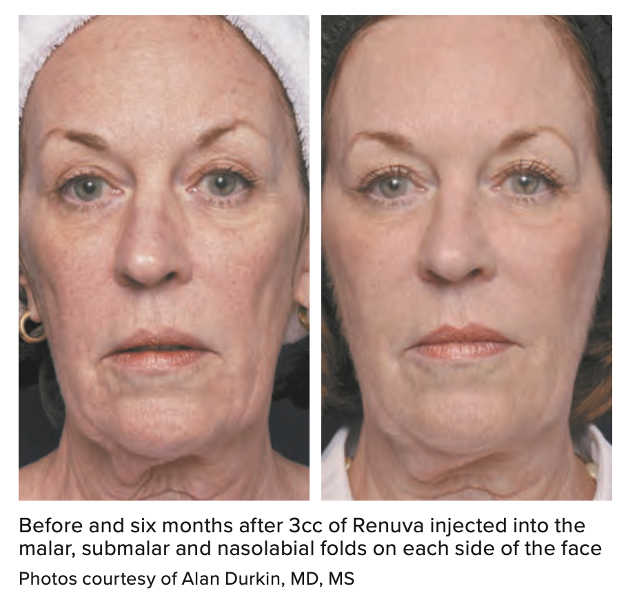 Before and six months after 3cc of Renuva injected into the malar