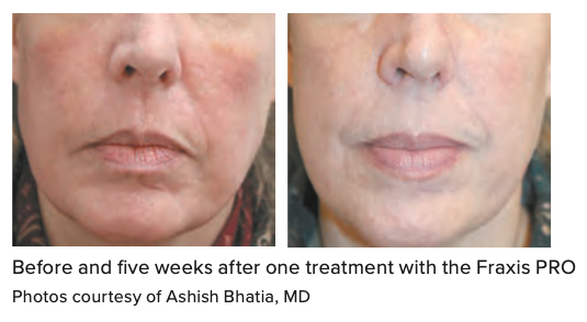 Before and five weeks after one treatment with the Fraxis PRO Photos courtesy of Ashish Bhatia, MD
