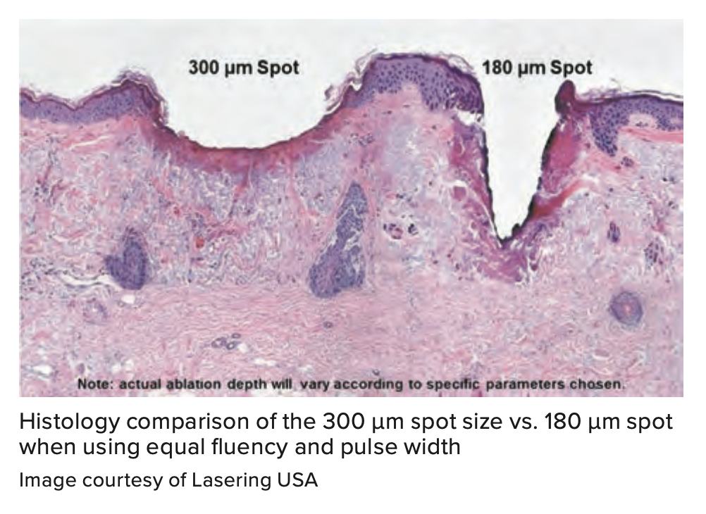 Histology comparison of the 300