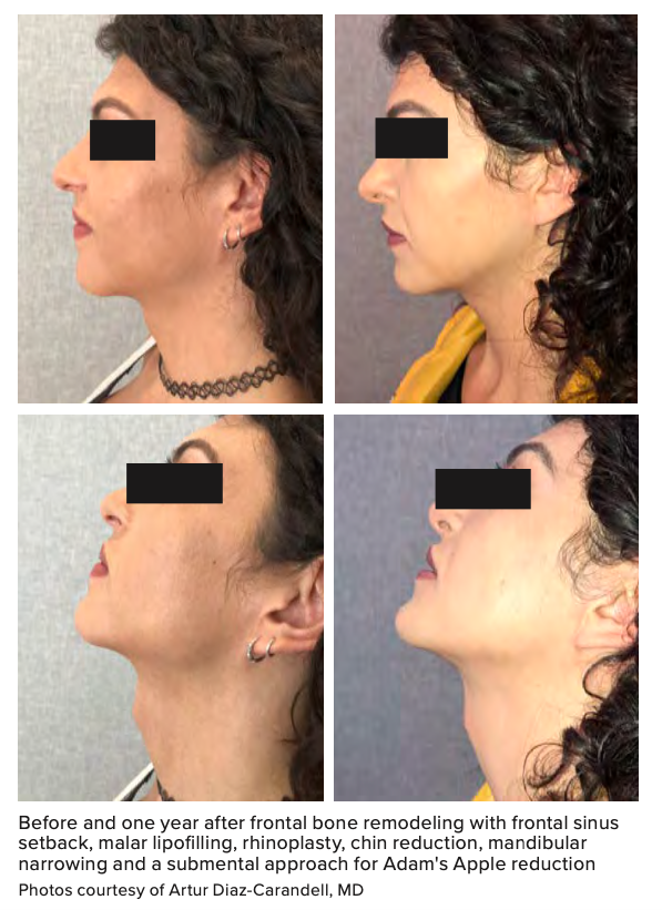 Before and one year after frontal bone remodeling with frontal sinus setback, malar lipofilling, rhinoplasty, chin reduction, mandibular narrowing and a submental approach for Adam's Apple reduction Photos courtesy of Artur Diaz-Carandell, MD