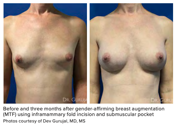 Before and three months after gender-affirming breast augmentation (MTF) using inframammary fold incision and submuscular pocket Photos courtesy of Dev Gurujal, MD, MS