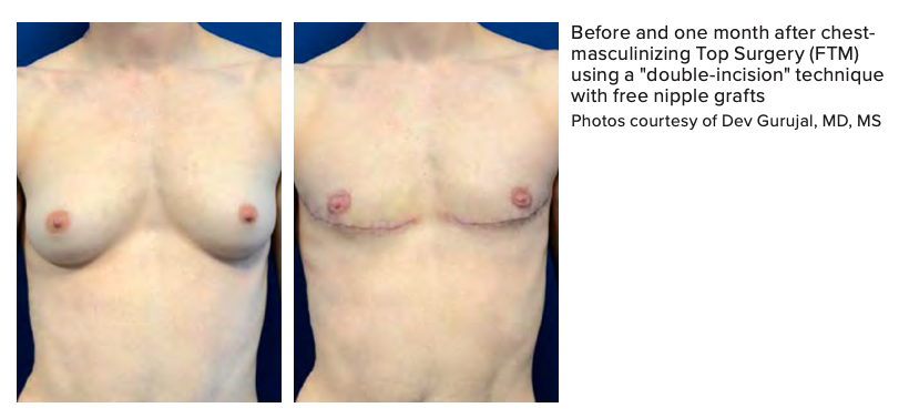 "Before and one month after chest- masculinizing Top Surgery (FTM) using a ""double-incision"" technique with free nipple grafts Photos courtesy of Dev Gurujal, MD, MS"