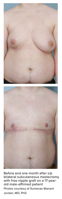 Before and one month after s/p bilateral subcutaneous mastectomy with free nipple graft on a 17-year- old male-affirmed patient Photos courtesy of Sumanas Wanant Jordan, MD, PhD