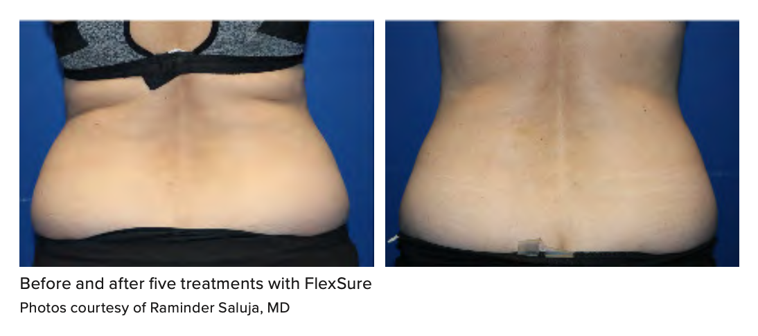 Before and after five treatments with FlexSure Photos courtesy of Raminder Saluja, MD