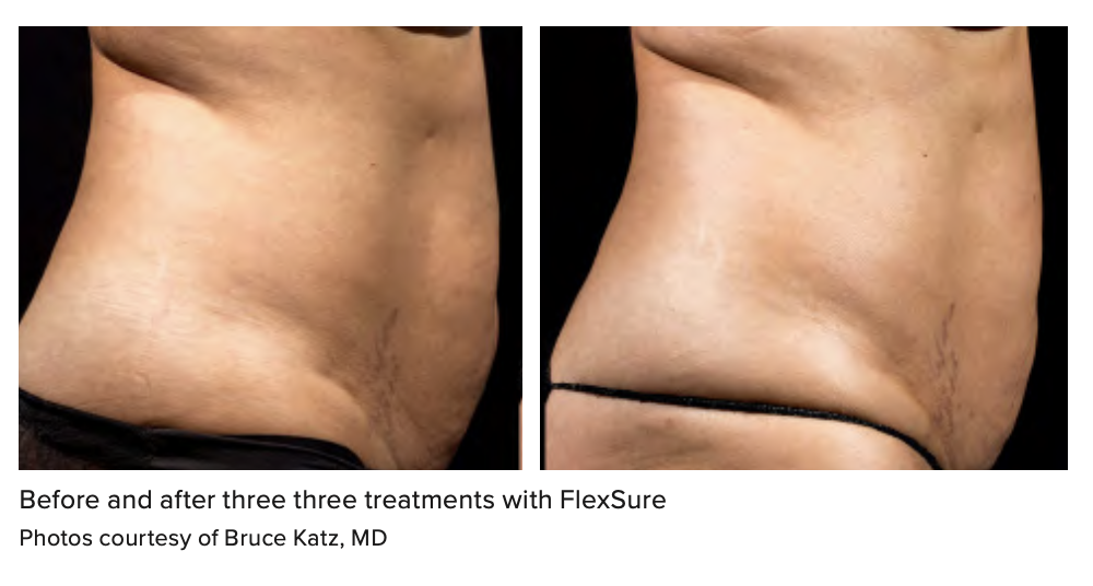 Before and after three three treatments with FlexSure Photos courtesy of Bruce Katz, MD