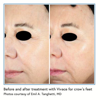 Before and after treatment with Vivace for crow's feet Photos courtesy of Emil A. Tanghetti, MD