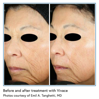 Before and after treatment with Vivace Photos courtesy of Emil A. Tanghetti, MD