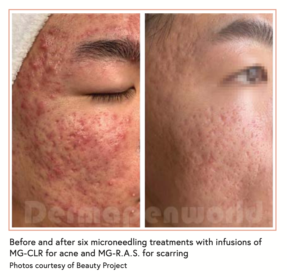 Before and after six microneedling treatments with infusions of MG-CLR for acne and MG-R.A.S. for scarring Photos courtesy of Beauty Project