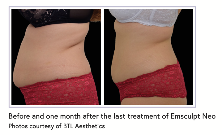 Before and one month after the last treatment of Emsculpt Neo Photos courtesy of BTL Aesthetics