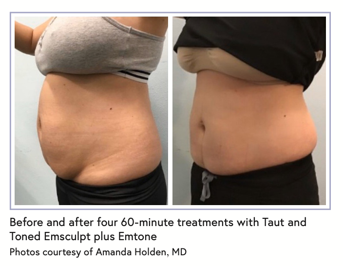Before and after four 60-minute treatments with Taut and Toned Emsculpt plus Emtone Photos courtesy of Amanda Holden, MD